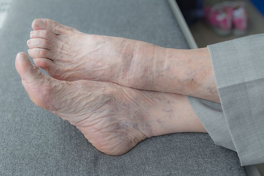 Venous Leg Ulcer Treatment: 6 steps to Wound Care at Home