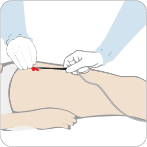 How to use Axiostat vascular