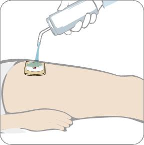 How to use Axiostat vascular Hemostatic Dressing
