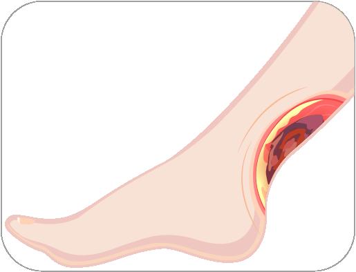 MaxioCel-Venous-Leg-Ulcer-Dressing
